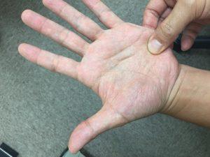 指の押圧ポイント